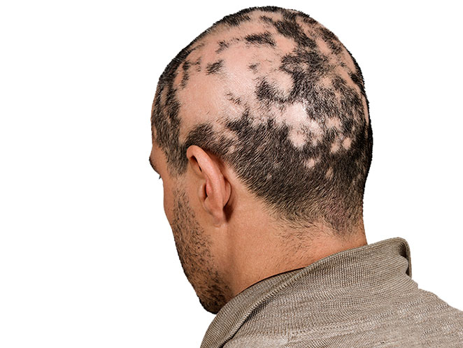 La alopecia areata