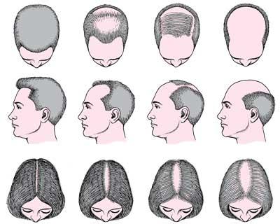 Tipo de alopecia en el hombre y la mujer