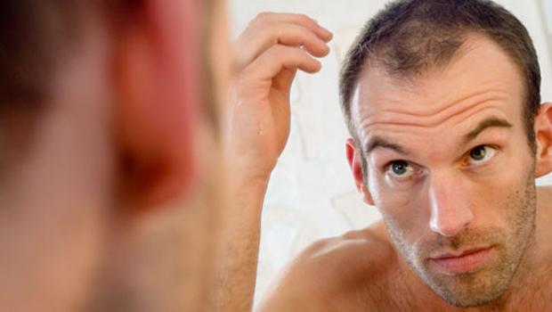 tipos de caida de cabello